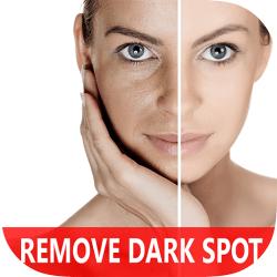 Get Rid Of Dark Spot