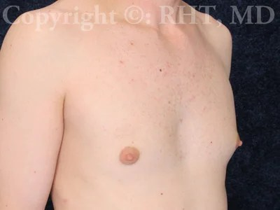 male breast enlargement by suction