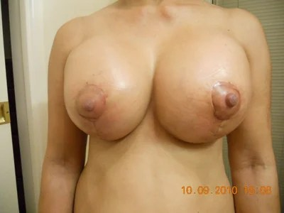 deformed nipples porn
