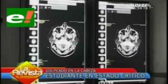 Estudiante golpeado en la cabeza podría perder la vida