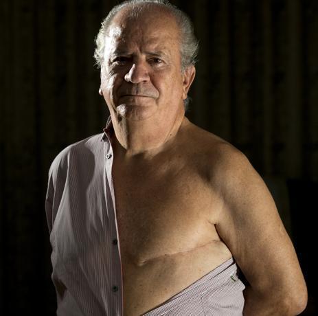 Ernesto Herrero, tenía 61 años cuando un día notó en la ducha cómo su pezón izquierdo se había retraído hacia dentro. E diagnóstico no se hizo esperar: cáncer de mama - Foto: José Ladra