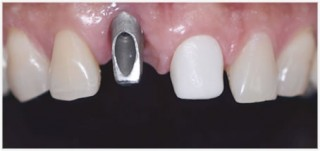 implantes01