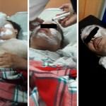 El Jadida : Agression par l'acide à hay Al Matar. Suite logique des événements