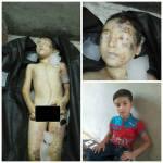 Βρέθηκε μικρό παιδί από την Συρία σε σκουπίδια της Τουρκίας με τα όργανα του αφαιρεμένα;