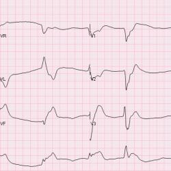 Initial ECG