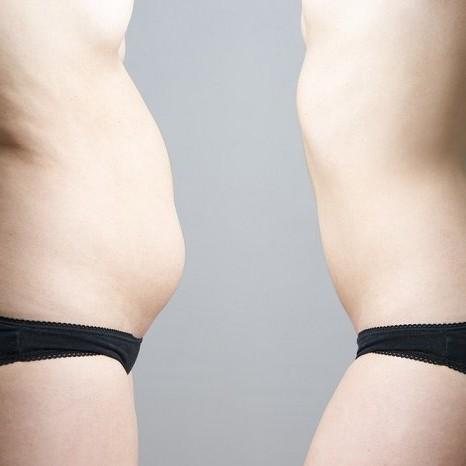 -vientre-grasa-abdominal1