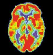 scan-brain