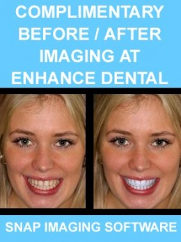 Before & After Imaging at Enhance Dental