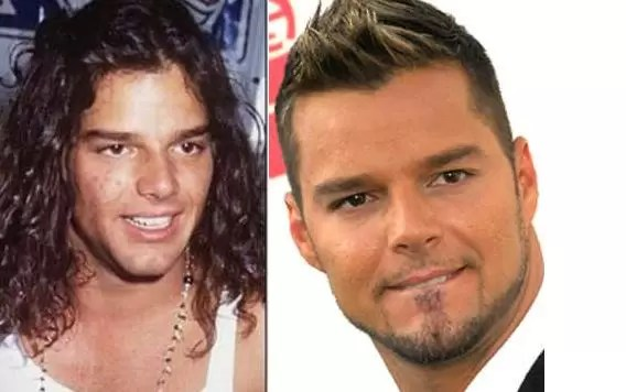 ricky martin antes despues
