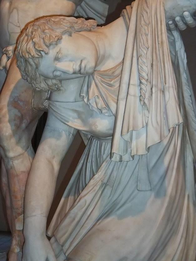 Ο Γαλάτης του Ludovis, Pωμαϊκό αντίγραφο του Ελληνικού πρωτοτύπου από τον Επίγονο, που ανέθεσε ο Julius Caesar. 1ος αιώνας π.Χ. Palazzo Altemps, Museo Nazionale Romano, Ρώμη, Ιταλία.