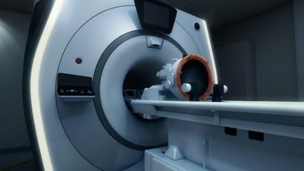 Exablate Neuro facilita operaciones del cerebro guiadas por resonancias magnéticas y sin cirugía. Foto cortesía de InSightec.