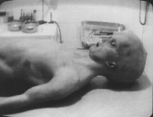 alien cirugia
