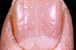 nail pitting