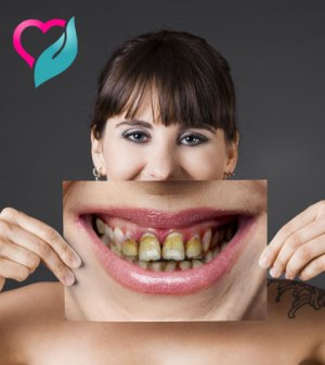 teeth plaque