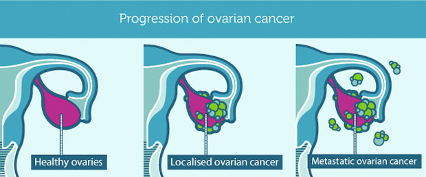 overian cancer stages