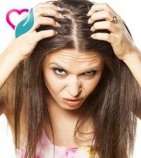 dandruff scalp