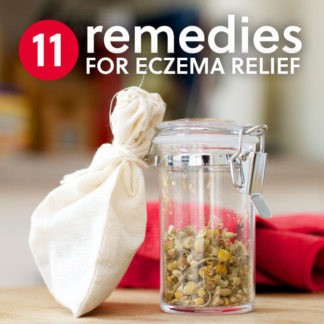 Here are 11 natural eczema treatments that will help heal and give you relief. You need to try no. 4, it works so good!