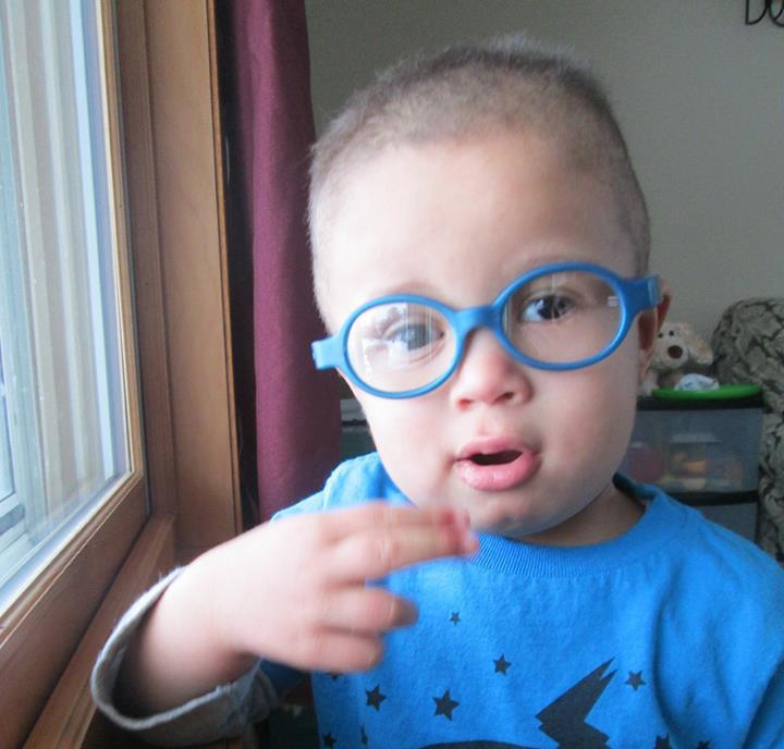 Jayden - Retinoblastoma