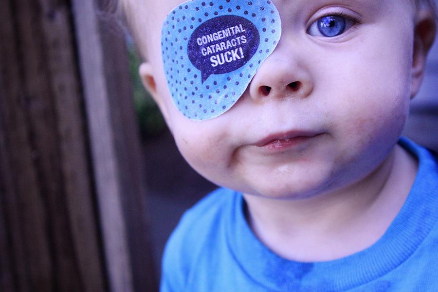 congenital cataracts suck
