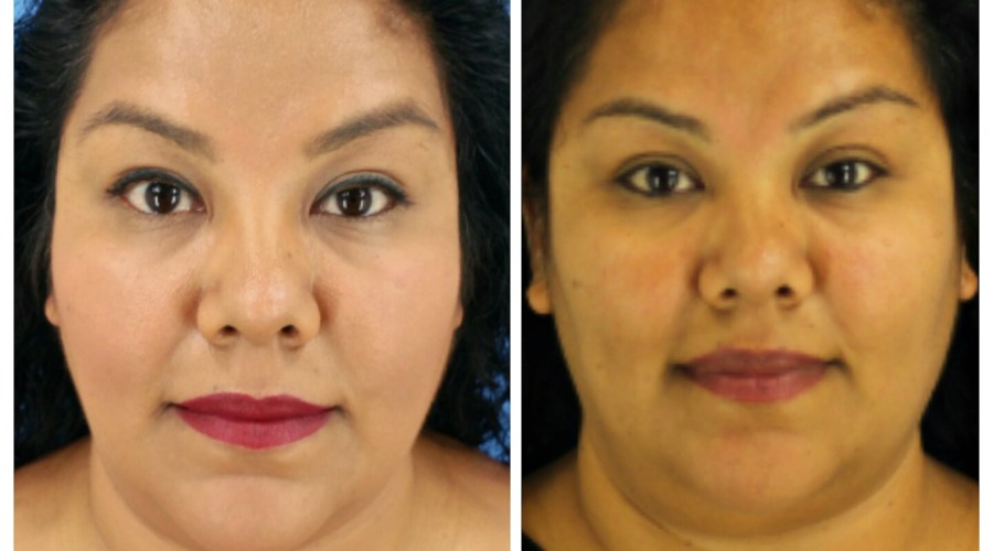 2nd Kybella Treatment Update with Pictures #CosmetiCareMoms