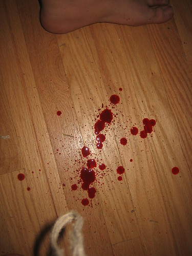 Spitting up blood
