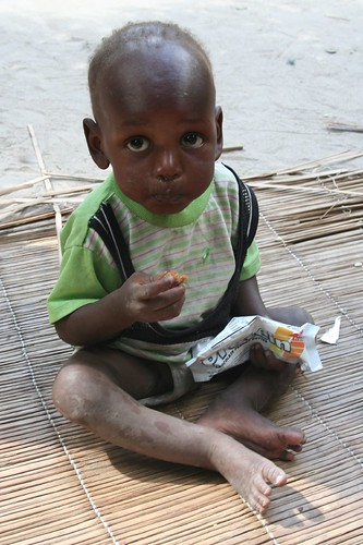 malnourished 1 year old, mother dying of hiv