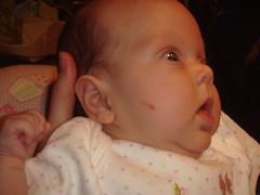 sweet baby cheek, bloodied!