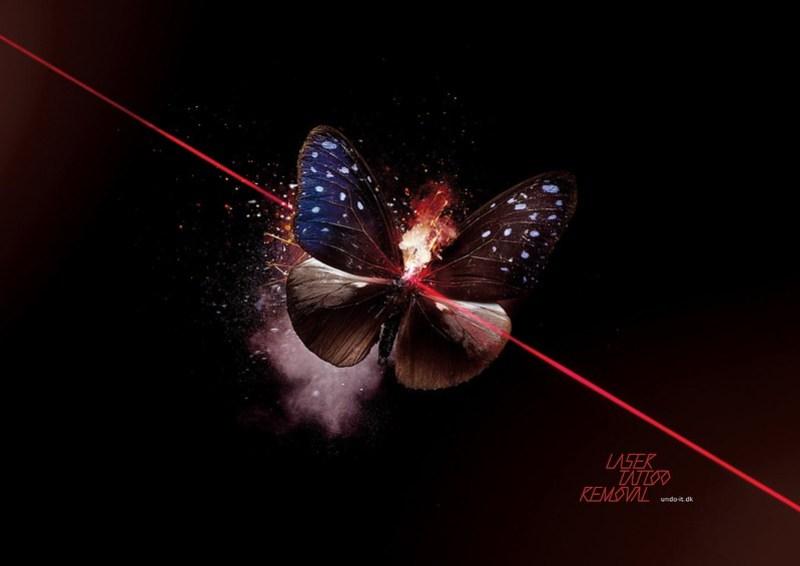 Undoit Butterfly