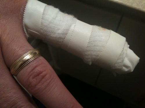 Mike's injury