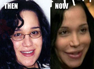 Nadya Suleman aka Octo Mom, Before and After Picture
