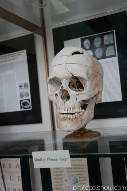 Harvard Medical School Phineas Gage skull