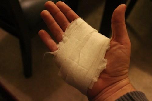 Andrea's Hand