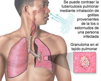 Tuberculosis: Infeccion Bacteriana Pulmonar