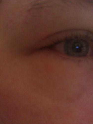 Puffy Eyes