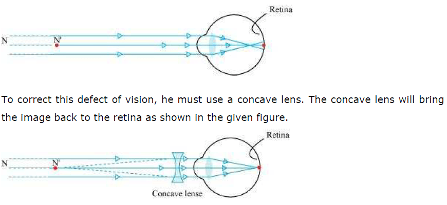 NCERT Solutions for Class 10th Science: Chapter 11 Human Eye and Colourful World