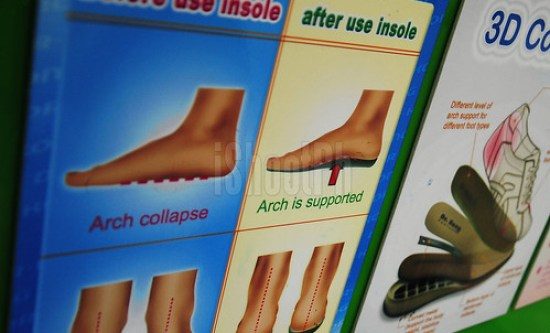 Image showing how the arch looks like after using insole.