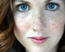 freckles how to get rid of hyperpigmentation fast