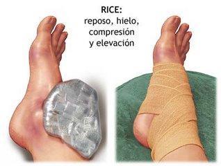 La técnica RICES (fisioterapia) en lesiones deportivas