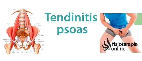 Tendinitis del Músculo iliopsoas y el dolor pélvico