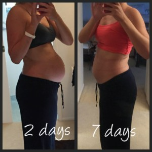 bellefit girdle before and after