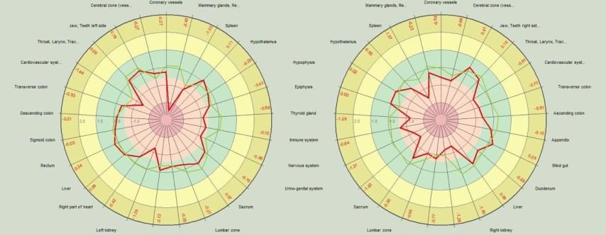 radial diagram (1)