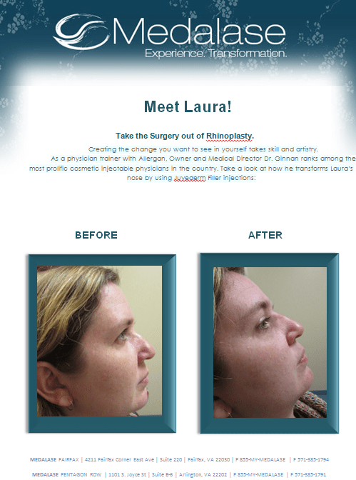 Lolli before and after Juvederm medalase treatment