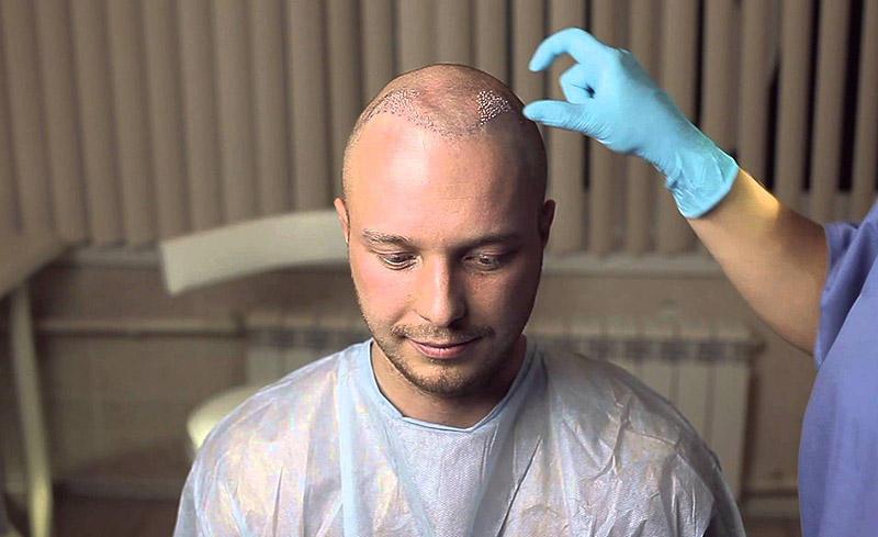 13. Волосы из носа, а также со спины легко трансплантировались бы на голову.