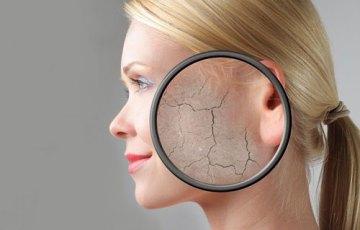 肌荒れの種類と改善方法