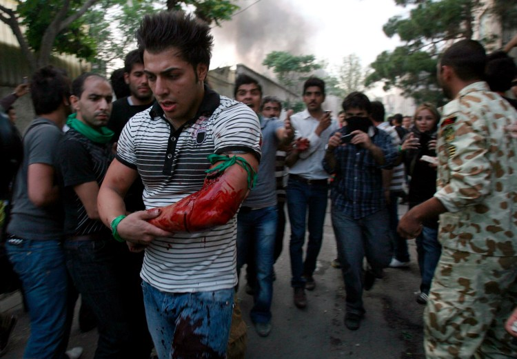 A demonstrator  who was shot during a protest demonstration in the streets of the capital Tehran, Iran, on June 15, 2009. (EPA)