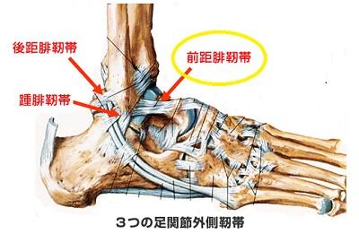 ankle_sprain_1