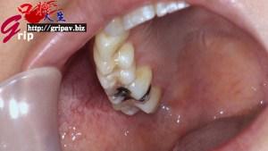 銀歯4本口腔鑑賞&全身くすぐり 清純派60ミリ長舌の執拗な鼻フェラベロほじり/源かのこ