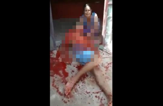 【グロ注意】自宅前で血塗れ瀕死の夫が倒れてたときの妻の反応・・・