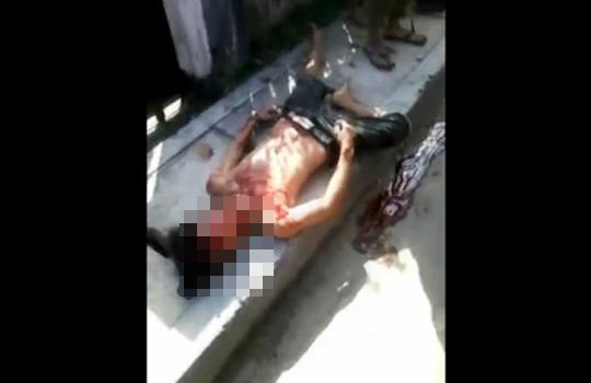 【閲覧注意】車に轢かれた少年が血を吐いて死んでいくまで・・・