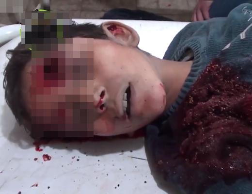 【イスラム国】ISISのスナイパーに頭を撃ちぬかれた少年の末路・・・